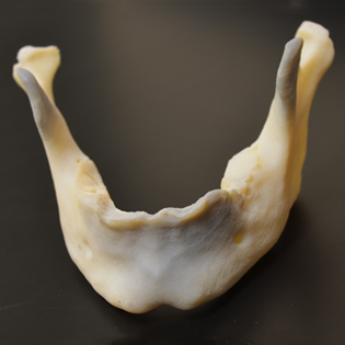 "alt=""jaw bone"""