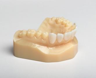 3D Printed Teeth Model